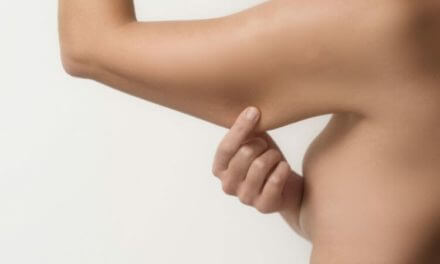 How to Get Rid of Underarm Flab